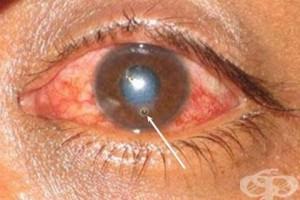 -малки операции за отстраняване на чужди тела от очите