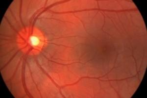 -офталмоскопия