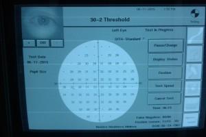 -компютърна периметрия с компютърен периметър на фирма ZEISS – за определяне на периферното зрение при глаукома и др.заболявания